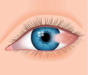 Top and Best Eye Hospitals in Hyderabad
