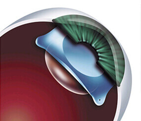 Cataract Surgery Treatment in Hyderabad